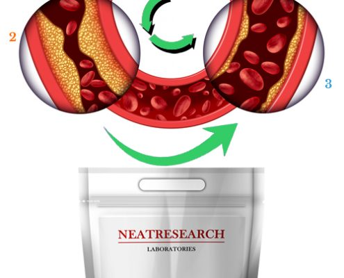 Cleaner Artery with SerraHappy