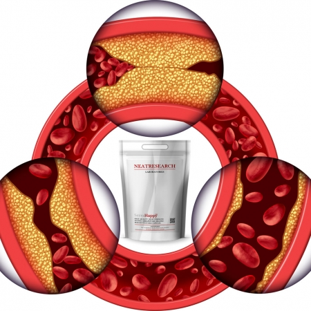 Cleaner Artery with SerraHappy Serrapeptase